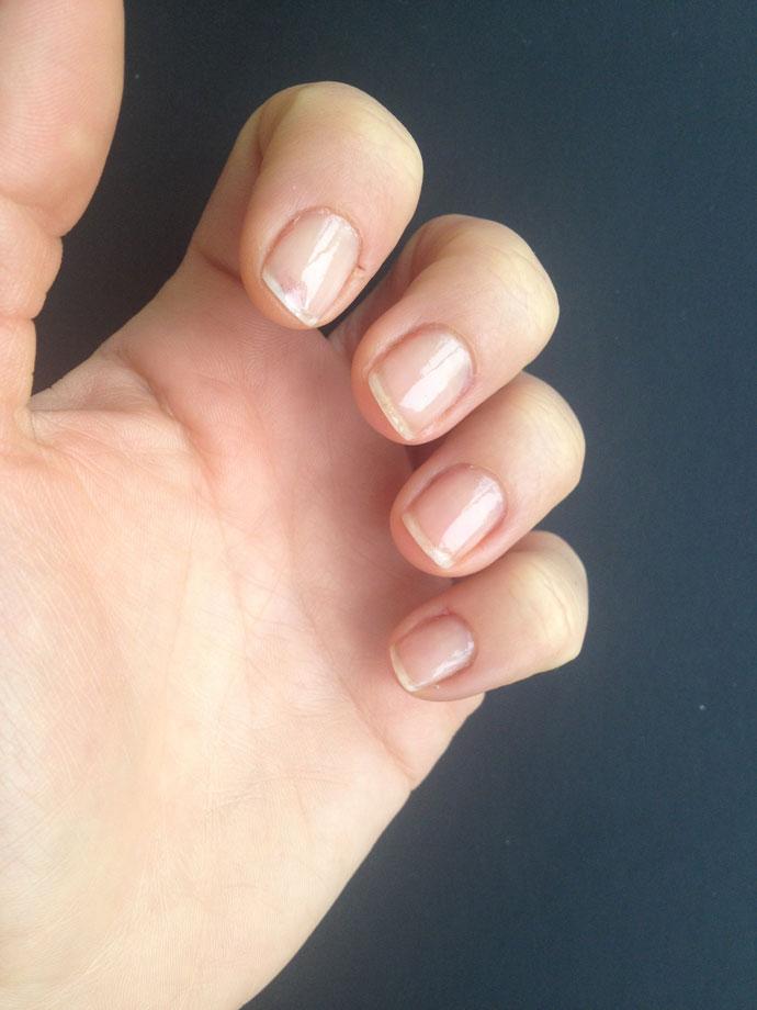Unghii-cu-Trind-Nail-Repair-2